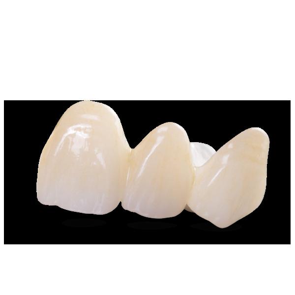 translucent-zirconia